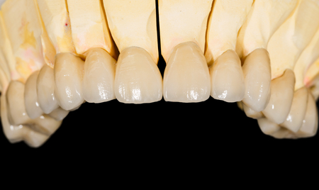 Dental ceramic bridge on isolated black background 版權商用圖片