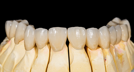 Dental ceramic bridge on isolated black background Stock Photo