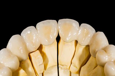 ponte in ceramica dentale isolato su sfondo nero