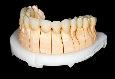 esthetics: Dental ceramic bridge on isolated black background Stock Photo