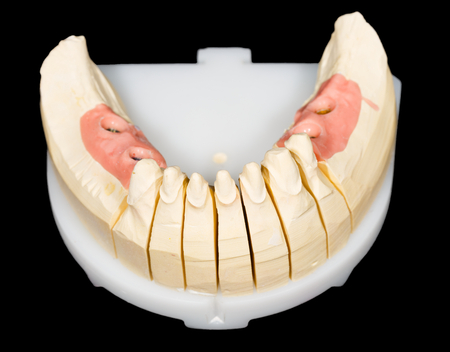 Gypsum model with teeth stump and implants on isolated black background