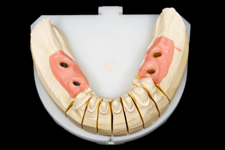 歯の切り株と分離の黒い背景にインプラントの石膏模型