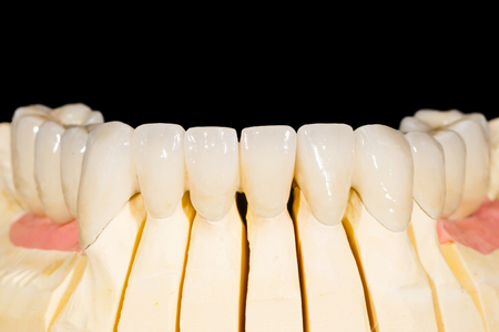 artificial model: Dental zirconia bridge on isolated black background