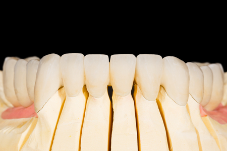 esthetics: Dental zirconia bridge on isolated black background