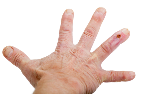 inflammatory: The postoperative scar on the fourth finger