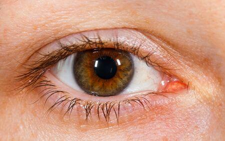 Close up photo of human brown eye