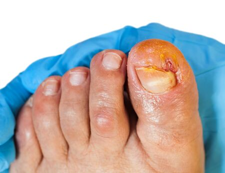 Close up photo of doctor examining the injured toenail