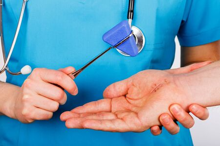 Doctor examining nerve conduction on palm of hand after carpal tunnel syndrome