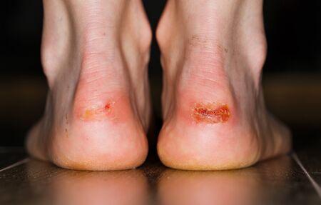 Close up photo of painful injury on heel Standard-Bild