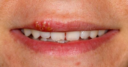 Close up photo of oral herpes simplex virus infection