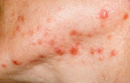 Close up photo of nodulocystic acne on human skin, severe type of acne