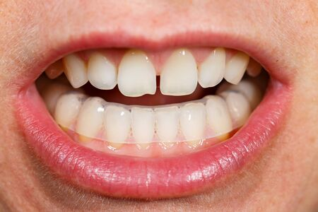 Placing a bite plate in mouth to protect teeth at night from grinding caused by bruxism Foto de archivo
