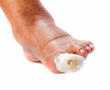 Close up photo of bandaged injured toenail on isolated white background