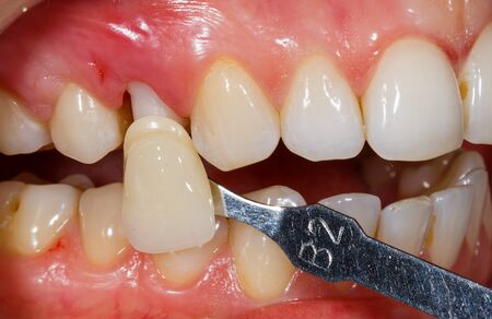 Photo of teeth shade determination in dental clinic