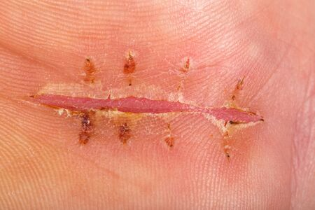 Close up photo of surgical suture on palm of hand