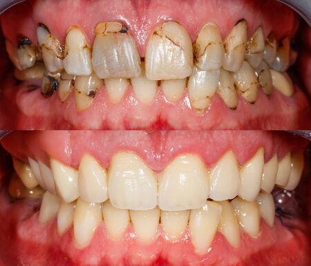 Close up photo of teeth before and after treatment