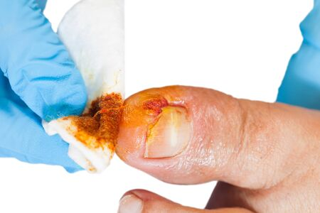 Close up photo of doctor disinfect the injured toenail