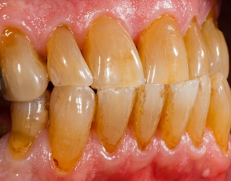 Close up photo of porcelain, zirconia teeth in human mouth