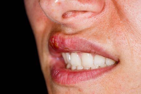 Nahaufnahme einer oralen Herpes-simplex-Virusinfektion