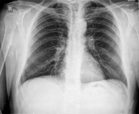 costilla: radiografía de tórax Foto de archivo