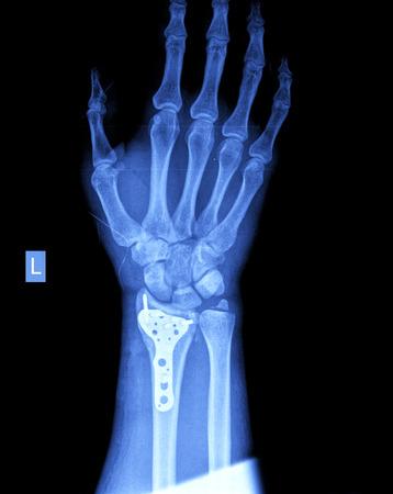 xray of hand photo