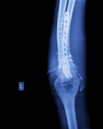 thumb x ray: broken arm Stock Photo