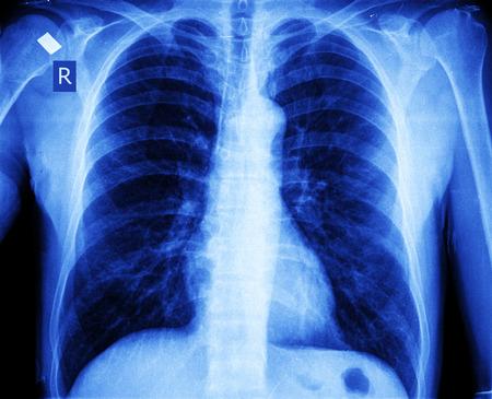 human intestine: xray of chest