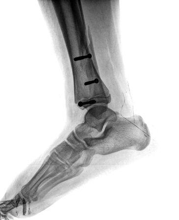 x rays negative: broken foot with screw Stock Photo