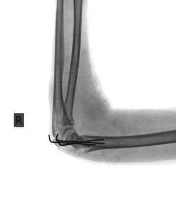 brazo roto: brazo roto con el tornillo