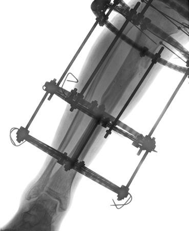 broken leg: Broken tibia and fibula Xray
