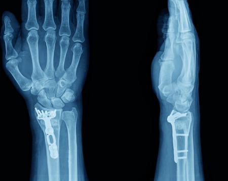 x ray machine: xray of hand Stock Photo