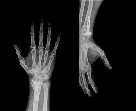 x ray skeleton: xray of hand Stock Photo