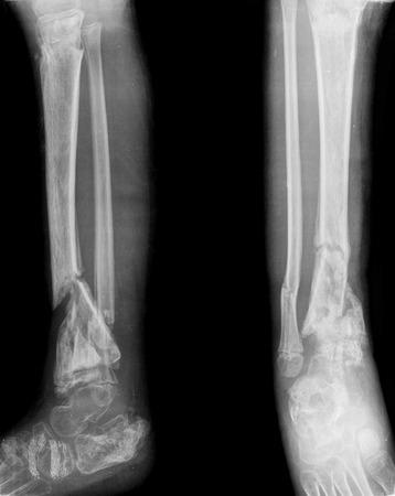 jambe cass�e: jambe cass�e Banque d'images