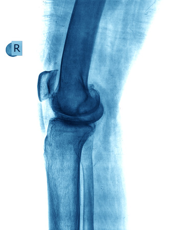 orthopaedist: xray knee Stock Photo