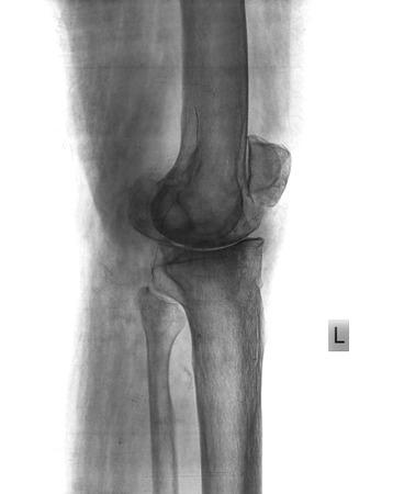 x rays negative: xray knee Stock Photo