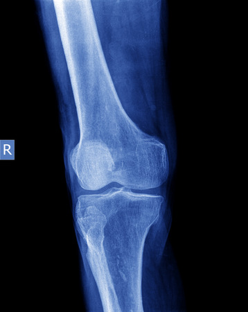 orthopaedist: xray of knee Stock Photo