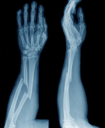fracture arm: broken arm Stock Photo