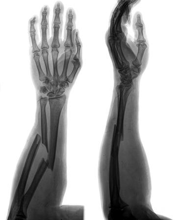brazo roto: brazo roto Foto de archivo
