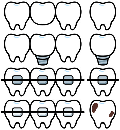 Dental treatment Illustration