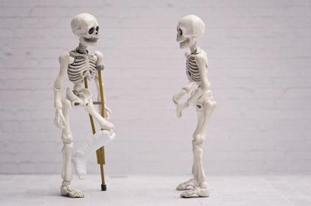 pierna rota: Roto esqueleto de la pierna charlando con su amigo