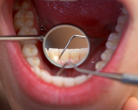 Close up of an extensive dental examination photo