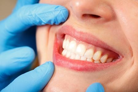 Patiënt bij een tandheelkundige kliniek met een mooie glimlach Stockfoto