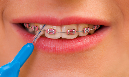 Close up of a woman mouth and interdental brushing