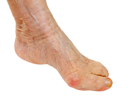 contusion: Picture of an elderly feet on isolated background