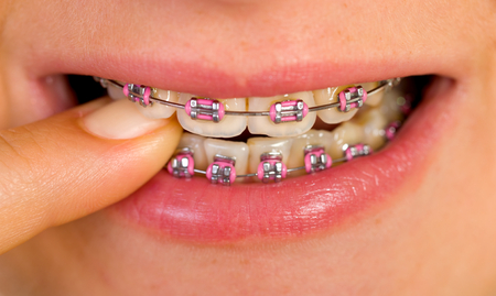Close up of a beautiful pink braces