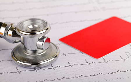 fibrillation: Stethoscope over electrocardiogram graph and a credit card