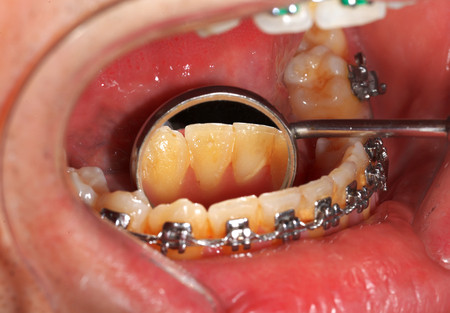 impacted: Picture of a dental brace examination at a clinic