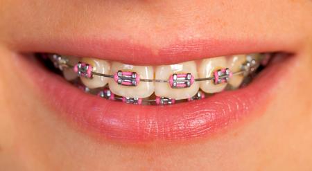 핑크 치과 교정기의 매우 닫습니다