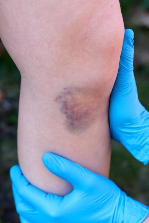 hematoma: Close up of a knee with hematoma