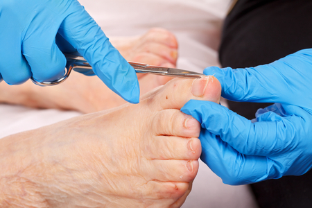 infirm: doctor hand examining an elderly patients foot